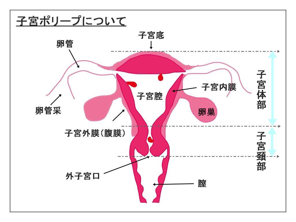 endometrial-polyp