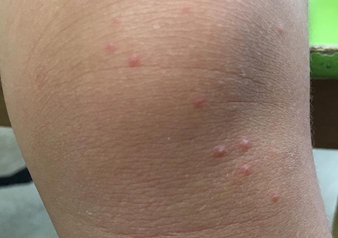 子供 赤い発疹 熱なし かゆみあり